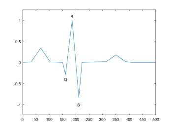 Figure 2.  A QRS complex from an ECG signal.