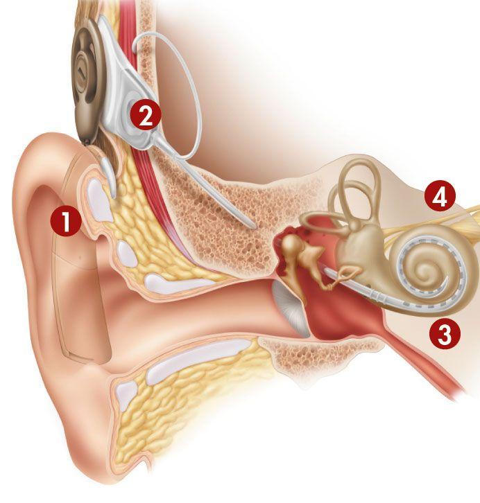 cochlear_fig3_w.gif
