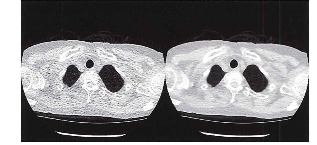 그림 1. 초저선량 CT(왼쪽)와 기존 CT(오른쪽)의 이미지 품질 비교.