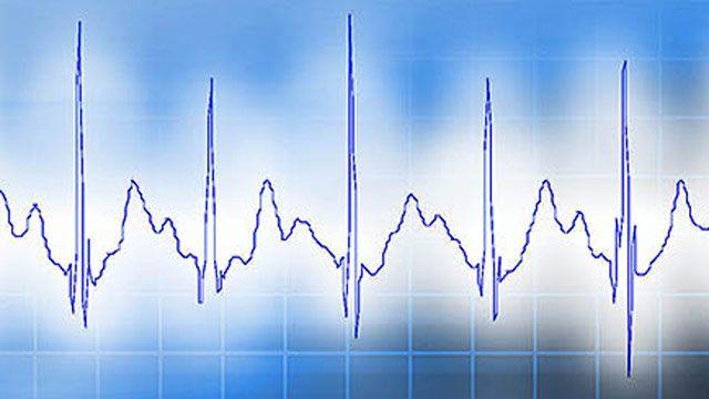 VivaQuant, 보행 ECG 감지를 위한 임베디드 디바이스의 개발 및 검증 가속