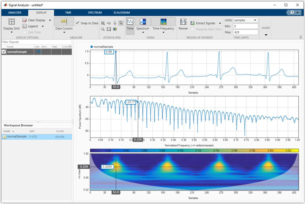 Analyzing an ECG signal in time, frequency and time-frequency domains with the Signal Analyzer app in MATLAB.