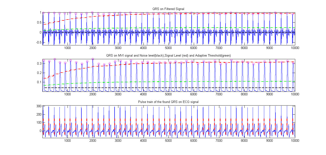 a real time qrs detection algorithm Review and comparison of real time electrocardiogram segmentation algorithms for biometric applications filipe canento1, andr´e lourenc¸o 1,2, hugo silva1 and ana fred1 1instituto de telecomunicac¸oes, instituto superior t˜ ecnico, lisbon, portugal.