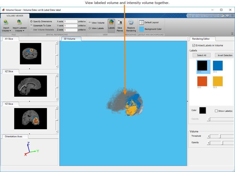 Volume Viewer 앱을 사용하면 3차원 볼륨 또는 레이블이 지정된 3차원 볼륨 데이터와 상호 작용하고 볼 수 있습니다.