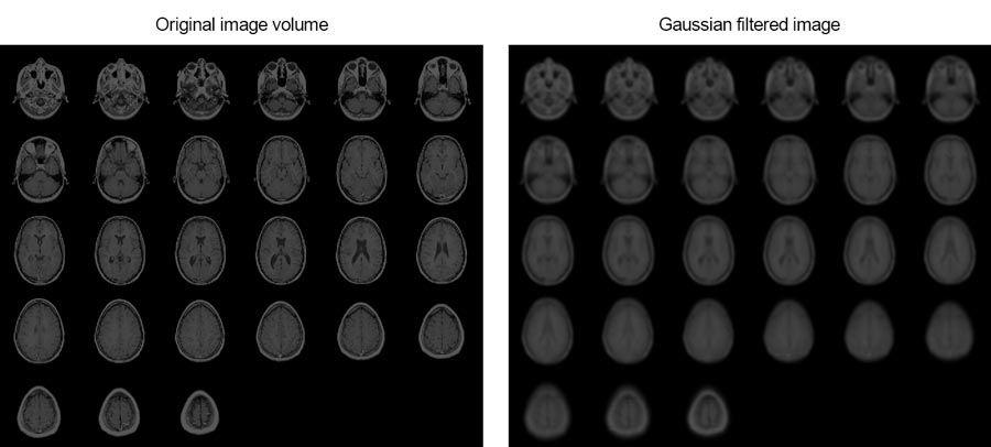 이 예제는 3차원 가우스 필터링을 사용하여 인간 두뇌의 MRI 영상을 부드럽게 하는 방법을 보여줍니다.