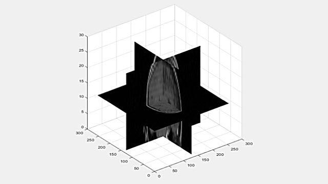 3차원 볼륨을 2D 슬라이스로 보기.