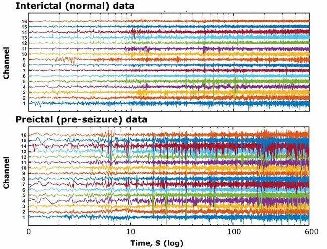 정상 기간 및 발작 전 기간에 간질 피험자에서 획득한 EEG 기록에 상응하는 다중 채널 신호 데이터.