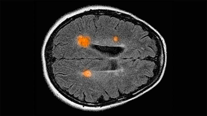 인간 두뇌 매핑