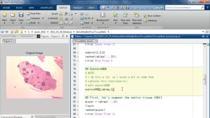 이번 webinar에서는 MATLAB과 image processing toolbox를 이용하여 의료 영상 이미지 분석을 어떻게 수행하는지에 대해 살펴봅니다. 세포 조직 이미지에서 손상된 세포의 영상 분할 (segmentation)과 정량화 (quantification) 하는 예제를 통해 다음의 기능을 확인하실 수 있습니다.이미지 데이터 입출력 및 이미지 데이터 처리방법MATLAB 데스크탑 환경을 통한 알고리즘 개발이미지 segmentation